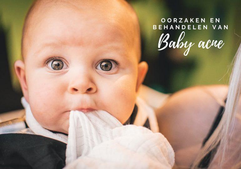 Pukkeltjes en acne bij je baby? Zo ga je er mee om!